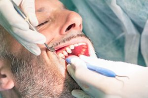 Senior men at dental